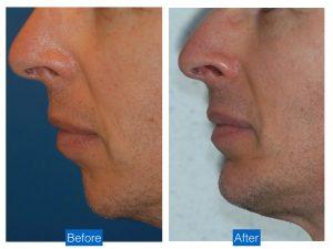 Chin augmentation advancement implant bethesda washington dc 3.jpeg