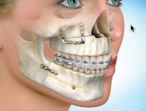 jaw surgery for better bite smile jaw surgery for better bite rh facialart com wiring jaw shut procedure Emergency Removal of Jaw Wires