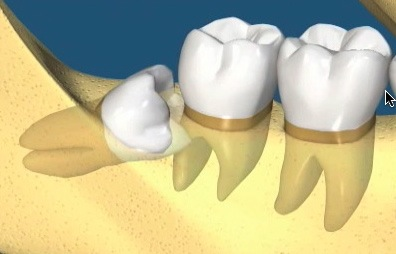 wisdom teeth impacted recommended for extraction by oral surgeon