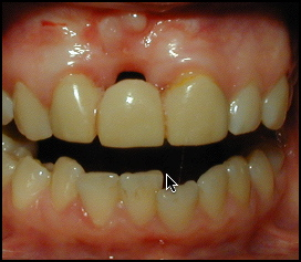orthodontist washington dc
