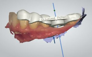 digital implant dentistry cad :cam guide