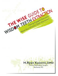 wisdom teeth extraction ebook by Hamid Ryan Kazemi oral surgeon in Bethesda, MD