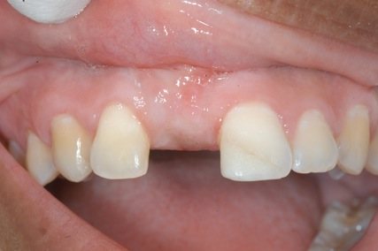 dentist bethesda md