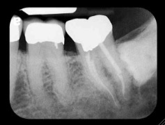 horizontally impacted third molar