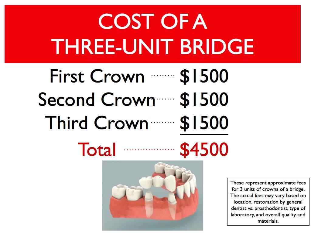 Outstanding Dental Bridge Cost 1024 x 768 · 435 kB · jpeg