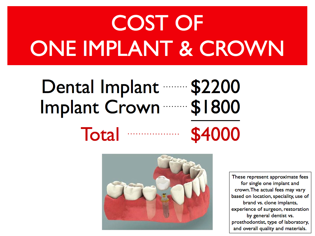 The cost of dental implant and crown
