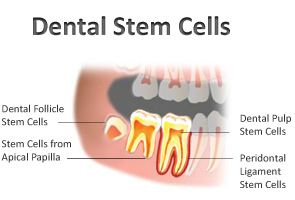 Stem Cells From Extracted Teeth Stem Cells From