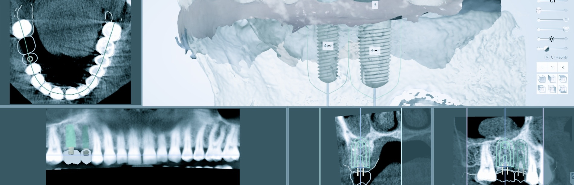 Cone Beam Dental Ct Scan Cbct Cone Beam Dental Ct Scan