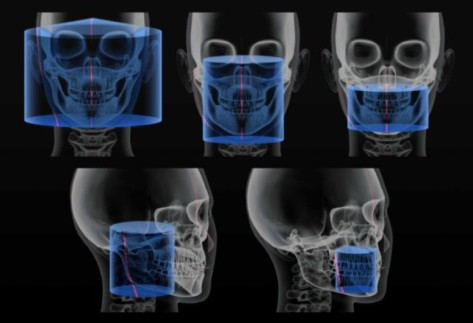 The Cost Of Dental Cone Beam Ct Scan The Cost Of Dental