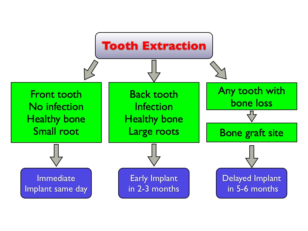 How Long After A Tooth Extraction Can You Get An Implant How Long After A Tooth Extraction Can You Get An Implant Kazemi Oral Surgery Facialart Com