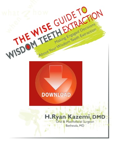 Wisdom teeth ebook download