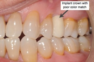 Implant crown with bad color match