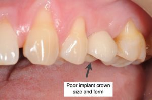Bad implant crown size and shape