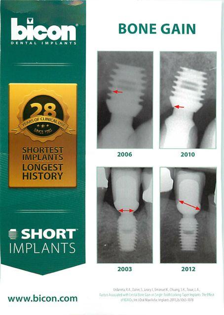 bicon dental implants and bone growth