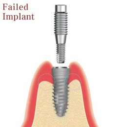 removal of failed dental implants
