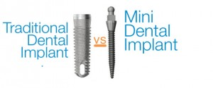 mini-dental-implants-vs-traditional-implants1