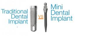 mini-dental-implants-vs-traditional-implants1