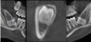 Cone Beam CT scan (CBCT) is taken to evaluate exact relationship of the lower wisdom teeth to the nerve.
