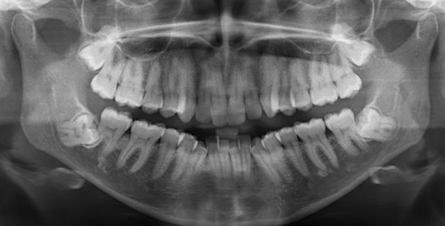impacted wisdom teeth close to nerve