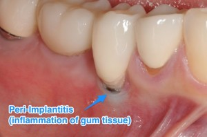 Dental implant with peri-implantitis due to poor implant position and implant surface exposure