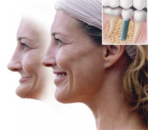 Jawbone Loss 2