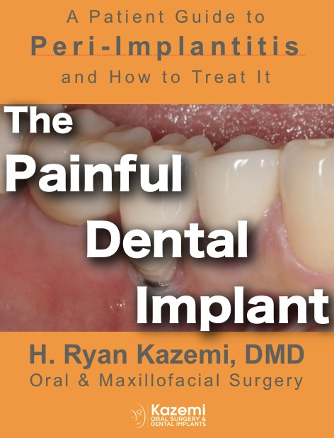 Peri-implantitis_e-book cover