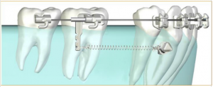 temporary anchorage device for orthodontics-Kazemi