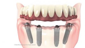 all on 4 dental implants bethesda washington dc dentist oral surgeon