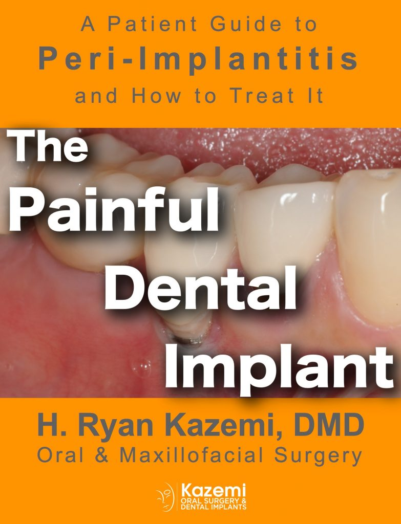 Peri-implantitis_ebook