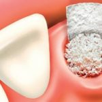Extraction site bone grafting course bethesda chevy chase oral surgery