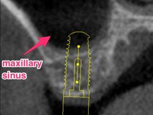 dental implant and maxillary sinus kazemi oral surgery