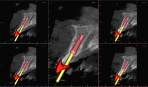 dental implant angulation kazemi oral surgery dentist