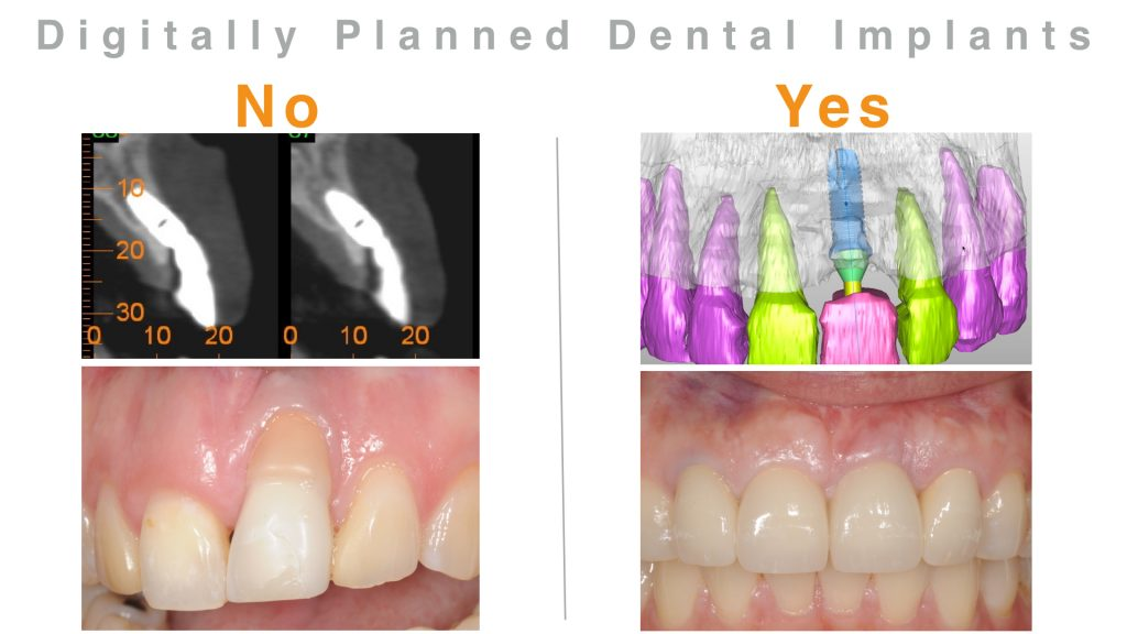 3-D digital planning for dental implants oral surgeon bethesda chevy chase dentist