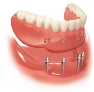 mini dental implants bethesda washington dc implant dentist