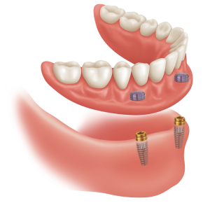 overdenture locator abutments oral surgeon bethesda