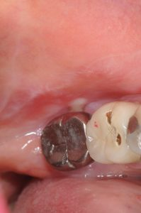 erosive lichen planus of gum tissue oral pathology oral surgery bethesda MD