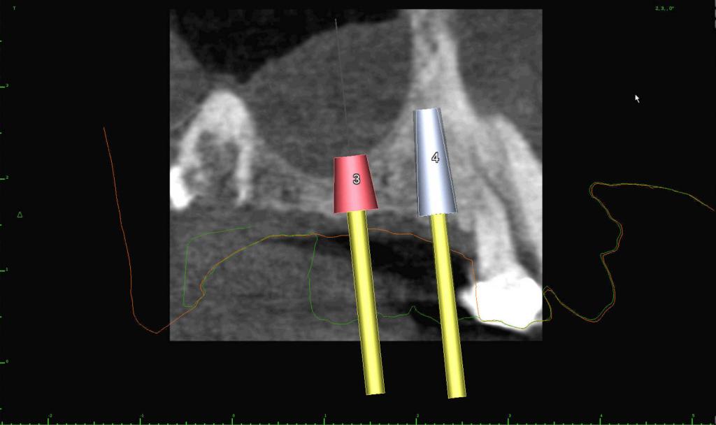 upper dental implant sinusitis sinus lift bone graft kazemi oral surgery
