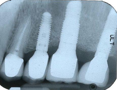 sinus lift bone graft implants final x-ray
