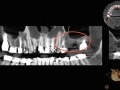 dental CT scan sinus lift graft kazemi oral surgery