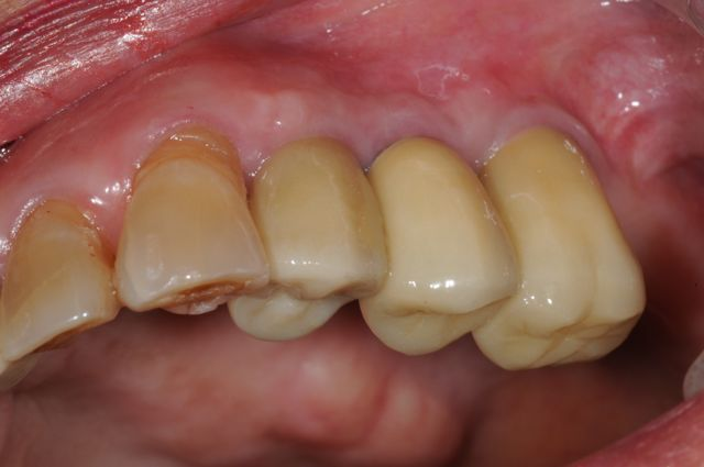 final implant crowns 3