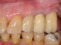 final implant crowns bite 2 copy