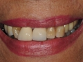 final implant crowns smile
