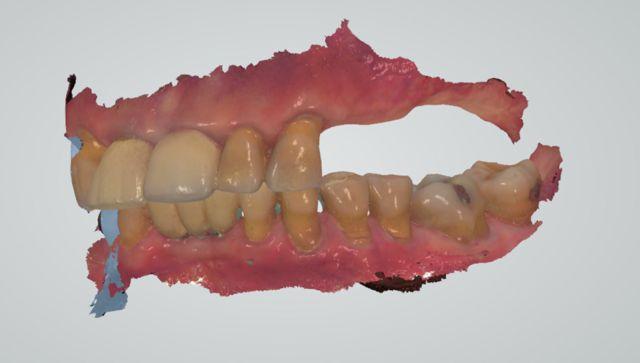 Fink left bite optical scan 3-shape