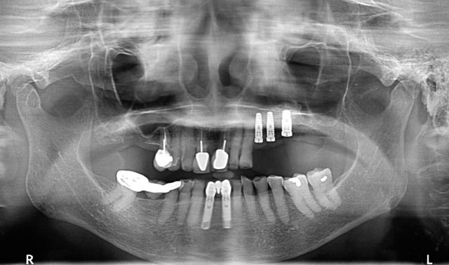Fink- post implant panorex