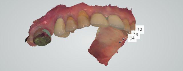 Fink upper optical scan 3-shape