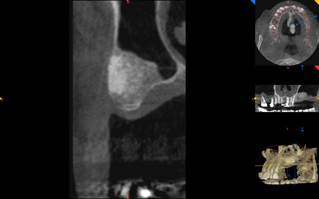 cbct after bone graft with sinus lift