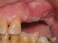 Missing teeth after bone graft
