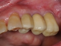 final implant crowns 3 copy