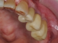 final implant crowns 4