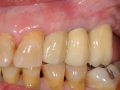 final implant crowns bite 2